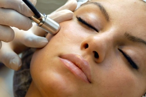 microdermabrasion_charlotte